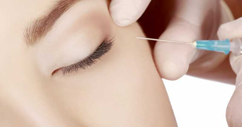 ACIDE HYALURONIQUE, BOTOX® OU COLLAGÈNE : COMMENT CHOISIR SON INJECTION ?